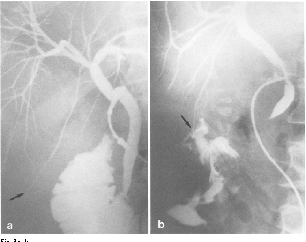 Figure 9 from Aberrant biliary ducts (vasa aberrantia): Surgical ...