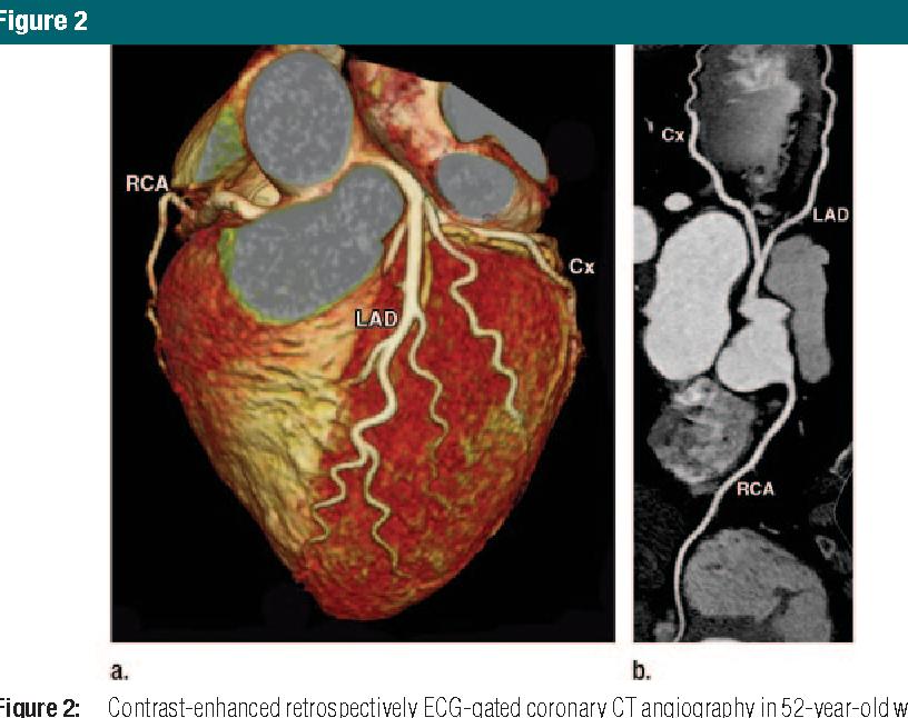 Figure 2 from CT of Coronary Artery Disease 1 - Semantic Scholar
