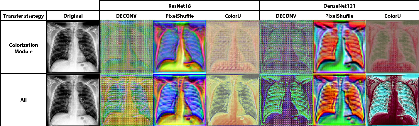 Figure 4 for Bridging the gap between Natural and Medical Images through Deep Colorization