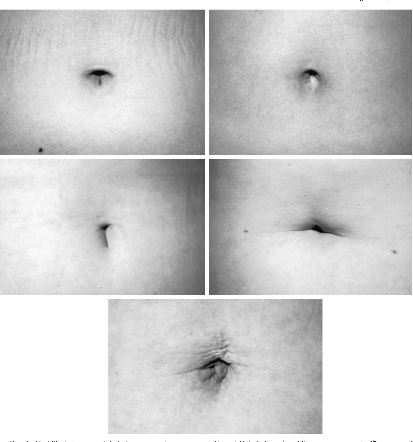 FIG. 1. Umbilical shapes and their frequency of occurrence. (Above, left) A T-shaped umbilicus was present in 37 percent of subjects (n 5 54); (above, right) an oval-shaped umbilicus was present in 22 percent (n 5 32); (center, left) a vertically shaped umbilicus was present in 17 percent (n 5 25); (center, right) a horizontally shaped umbilicus was present in 14 percent (n 5 21); and (below) distorted shapes were seen in 10 percent (n 5 15).