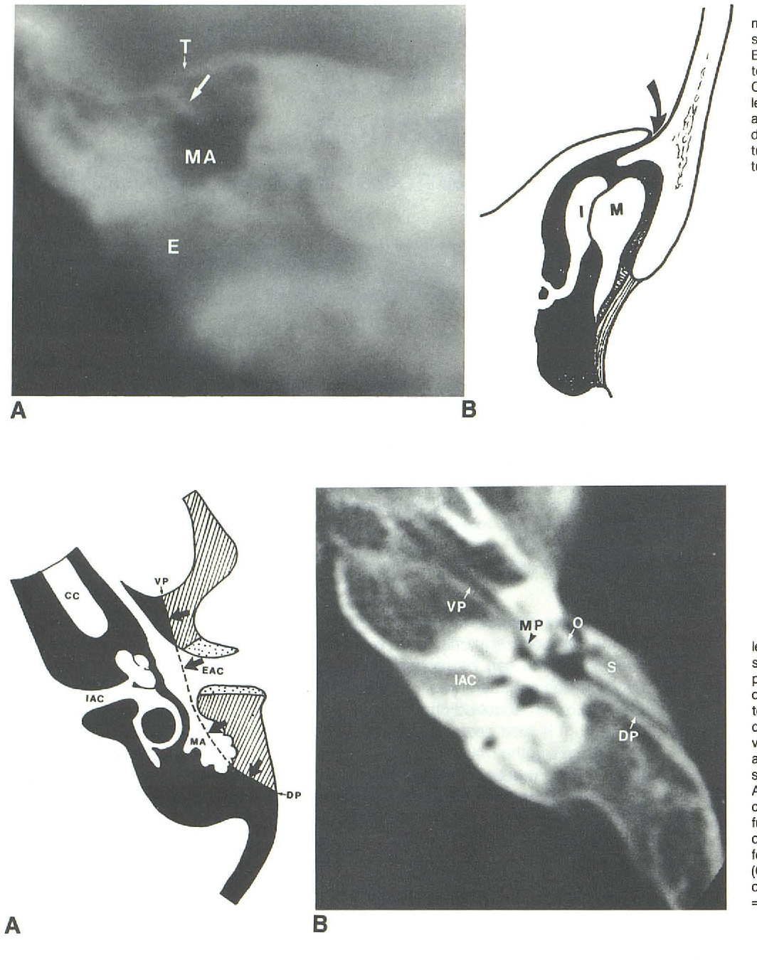 Figure 1 from Computed tomography of temporal bone pneumatization: 2 ...