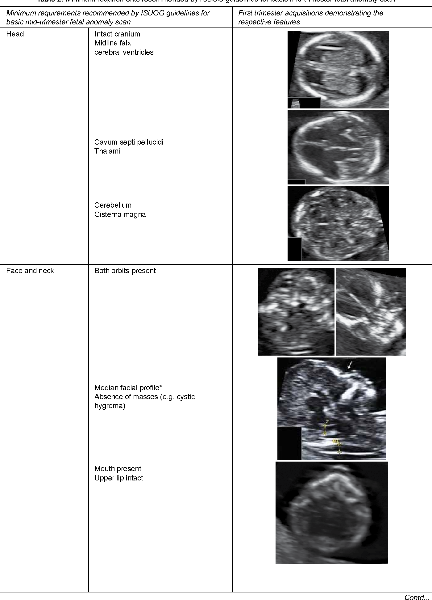 Challenges in Sonographic Detection of Fetal Major Structural ...