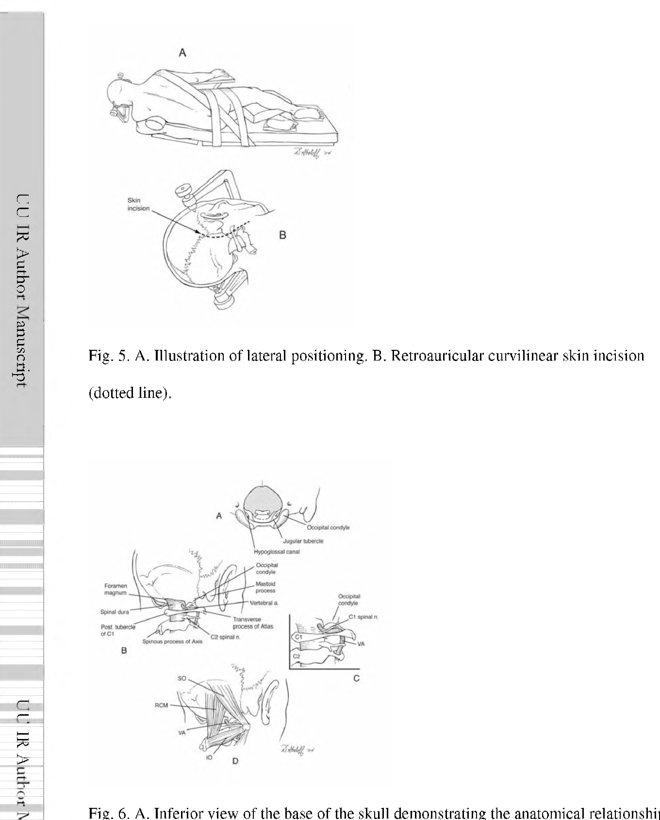 Far Lateral Transcondylar Approach for Resection of Neurenteric ...