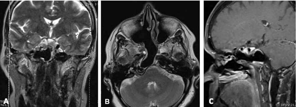 Fig. 5. Postoperative MRI performed 3 years after surgery showing a well-healed and aerated surgical cavity in the coronal T2-weighted (A), axial T2-weighted (B) and sagittal T1-with gadolinium (C) planes.
