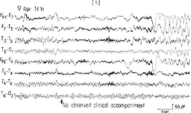 Figure 2 from Scalp-recorded ictal patterns in focal