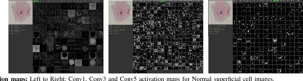 Figure 2 for Considerations for a PAP Smear Image Analysis System with CNN Features