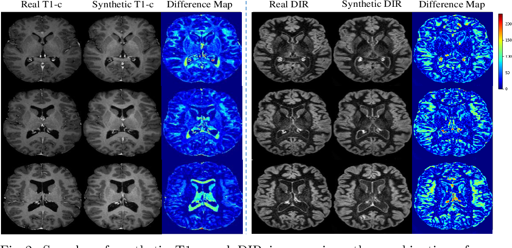 Figure 3 for DiamondGAN: Unified Multi-Modal Generative Adversarial Networks for MRI Sequences Synthesis