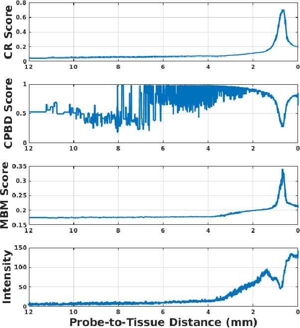 Figure 3 for Hybrid Robotic-assisted Frameworks for Endomicroscopy Scanning in Retinal Surgeries