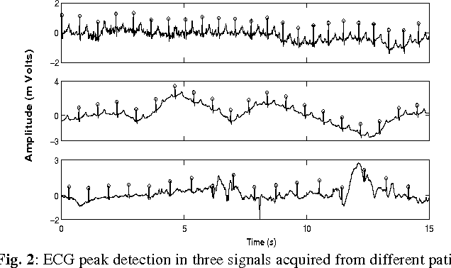 Figure 2 from Changes in Heart Rate Variability in Patients
