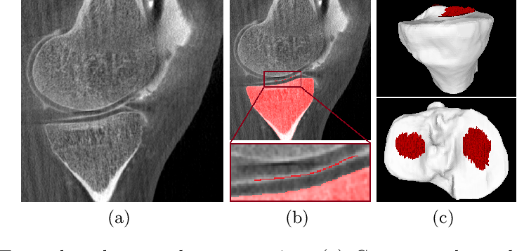 Figure 1 for Multi-Channel Volumetric Neural Network for Knee Cartilage Segmentation in Cone-beam CT