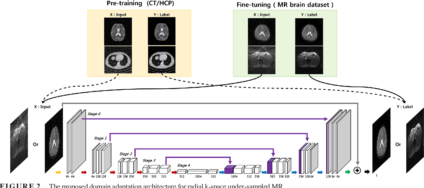 Figure 2 for Deep Learning with Domain Adaptation for Accelerated Projection-Reconstruction MR
