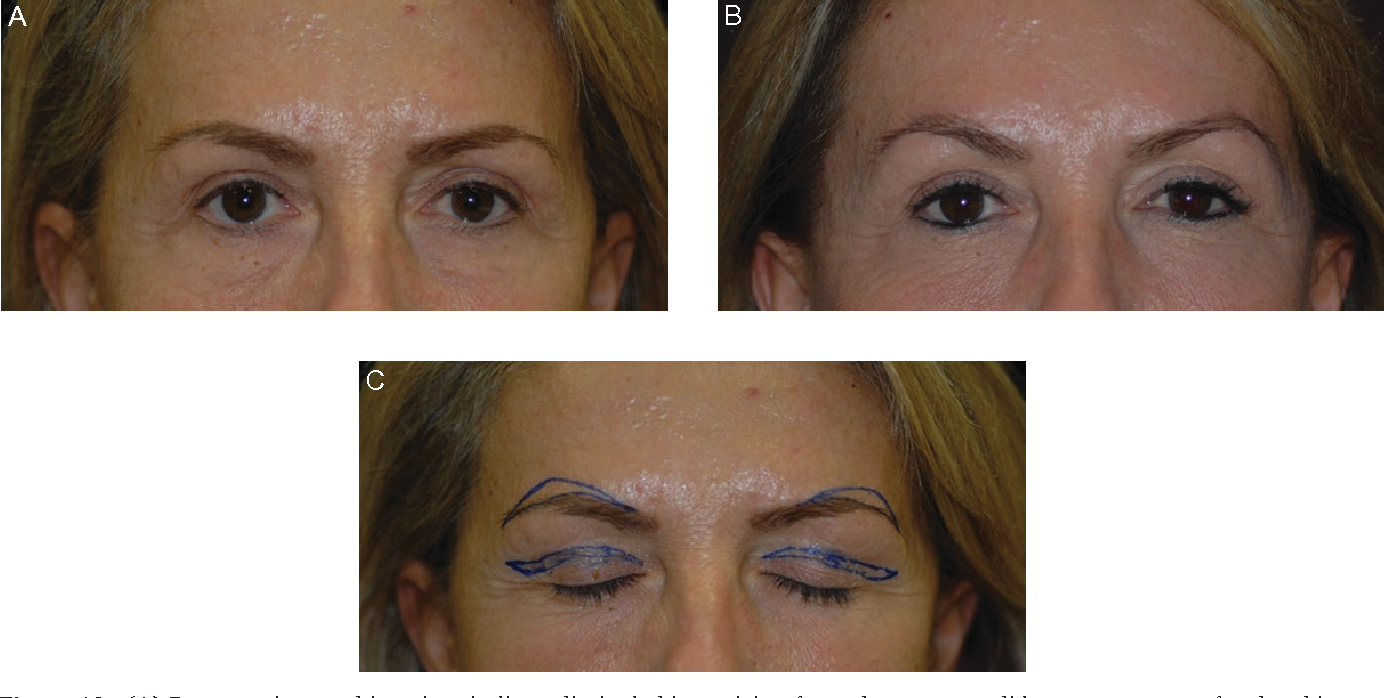 transcutaneous brow shaping a straightforward and precise method to lift and shape the eyebrows semantic scholar