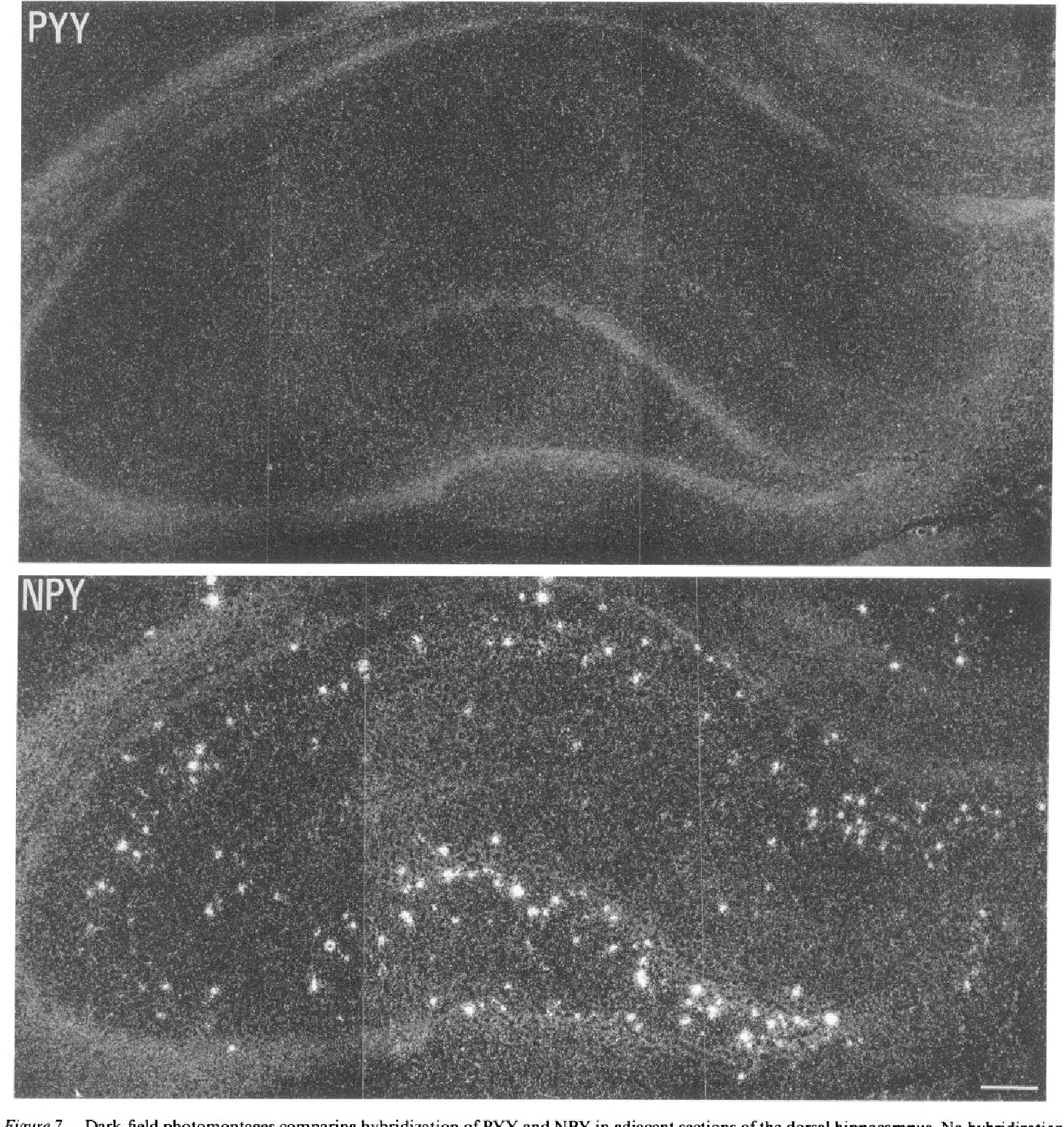Figure 7. Dark-field photomontages comparing hybridization of PYY and NPY in adjacent sections of the dorsal hippocampus. No hybridization is apparent with the PYY probe, but intense labeling can be seen with the NPY probe, particularly in the dentate gyrus. Scale bar, 100 pm.