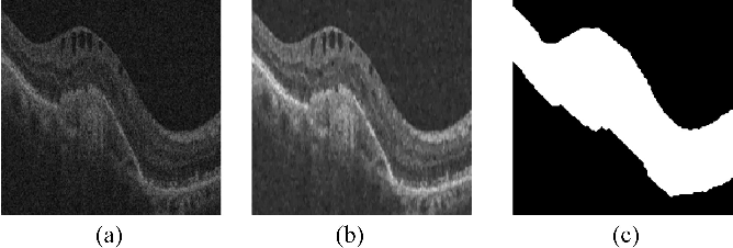 Figure 1 for Segmentation of retinal cysts from Optical Coherence Tomography volumes via selective enhancement