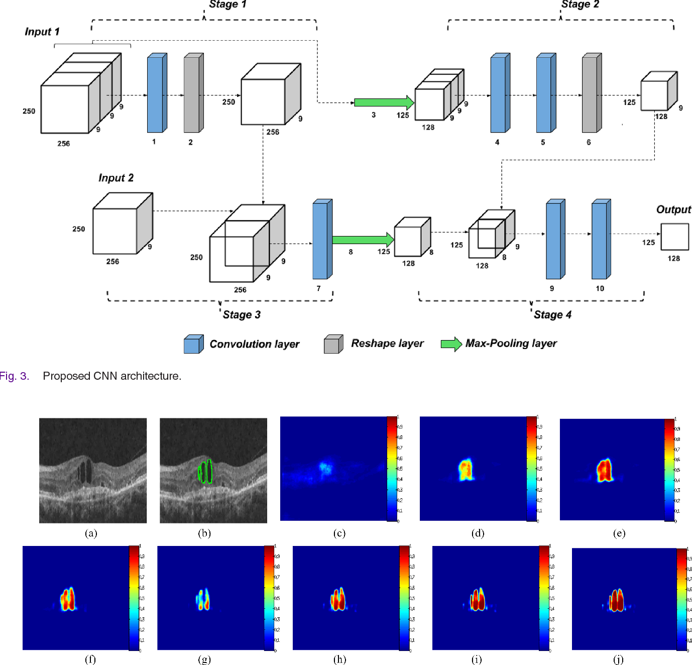 Figure 4 for Segmentation of retinal cysts from Optical Coherence Tomography volumes via selective enhancement