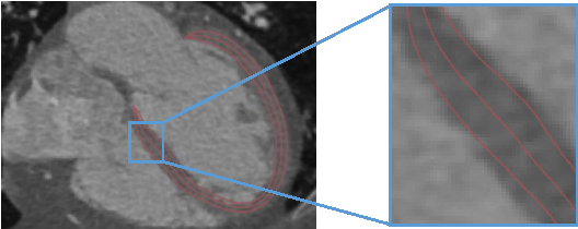 Figure 1 for Fast Segmentation of Left Ventricle in CT Images by Explicit Shape Regression using Random Pixel Difference Features