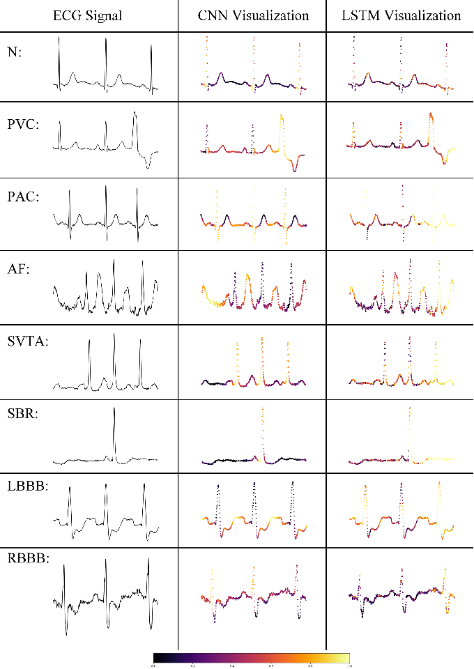 Figure 3 for Interpreting Deep Neural Networks for Single-Lead ECG Arrhythmia Classification