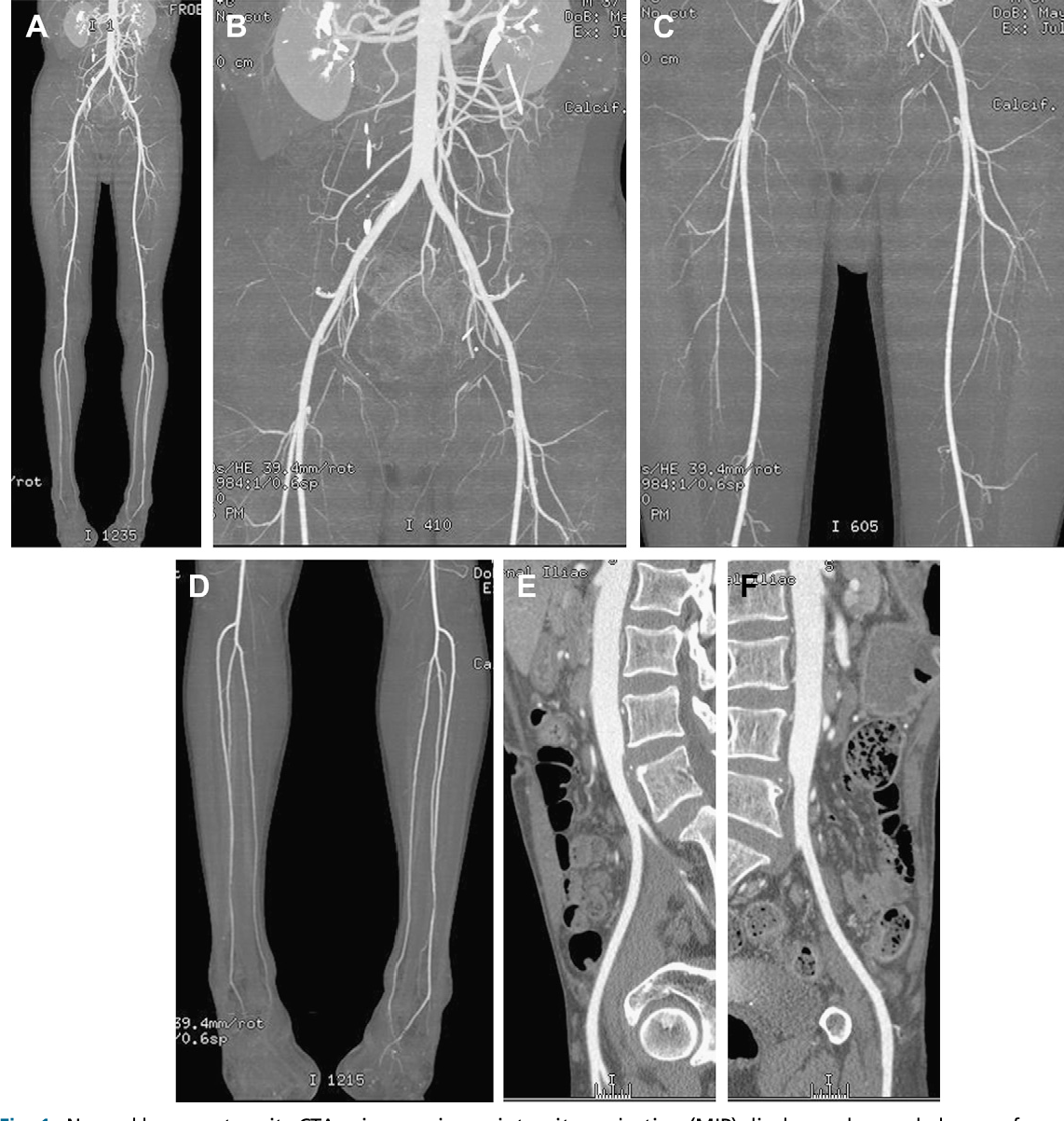CT angiography of the lower extremities. - Semantic Scholar