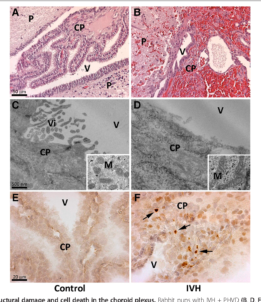 Figure 1 Analysis of structural damage and cell death in the choroid plexus. Rabbit pups with IVH + PHVD (B, D, F) or sham controls (A, C, E) were euthanized at 72 hours of age and the brains were removed from the skulls, sectioned at the level of the midseptal nucleus and placed in formaldehyde for subsequent histochemical analysis with H&E (A and B) and IHC analysis against cleaved caspase-3 (E and F) as described in Materials and Methods. For EM-IHC (C and D), the choroid plexus from pups with IVH + PHVD and sham controls at 72 hours was fixed and prepared as described in the Materials and Methods and observed in a Jeol JEM 1230 electron microscope. Recessed picture display mitochondrial structure. P = periventricular tissue, CP = choroid plexus, V = ventricle, Vi = villi, M = mitochondria. Arrow illustrates cleaved caspase-3 positive staining. Scale bar in (A) indicate 50 μm (is applicable for panels (A) and (B)), in (C) indicate 500 nm (is applicable for (C) and (D)) and (E) indicate 20 μm (is applicable for (E) and (F)). IHC, immunohistochemistry; IVH, intraventricular hemorrhage; PHVD, post-hemorrhagic ventricular dilatation.
