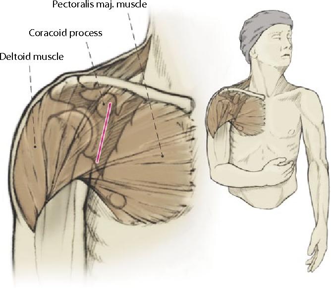 Anatomical glenoid reconstruction via a J-bone graft for recurrent ...