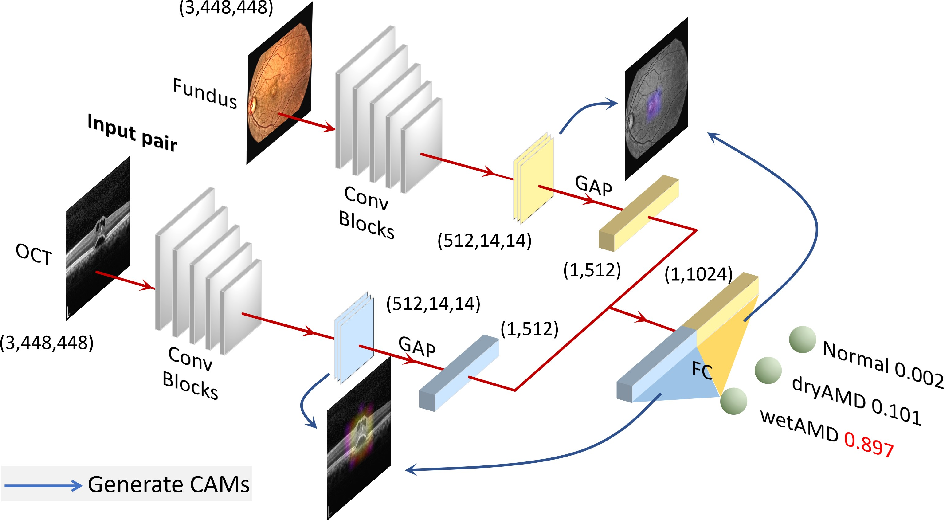 Figure 1 for Two-Stream CNN with Loose Pair Training for Multi-modal AMD Categorization