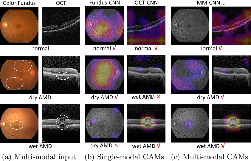 Figure 3 for Two-Stream CNN with Loose Pair Training for Multi-modal AMD Categorization