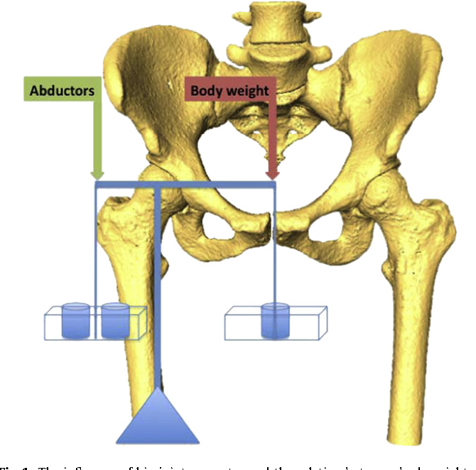 Figure 1 from A formula to predict patients\' gluteus medius muscle ...