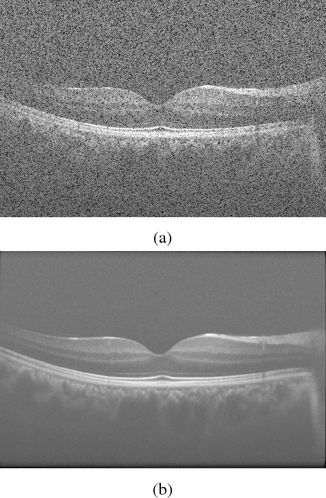 Figure 1 for Sparse And Low Rank Decomposition Based Batch Image Alignment for Speckle Reduction of retinal OCT Images