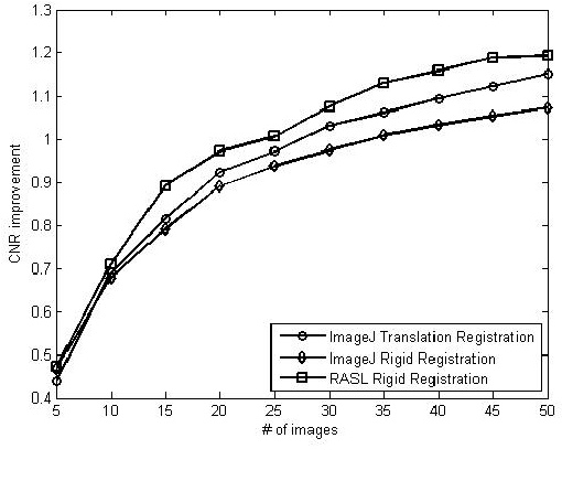 Figure 3 for Sparse And Low Rank Decomposition Based Batch Image Alignment for Speckle Reduction of retinal OCT Images