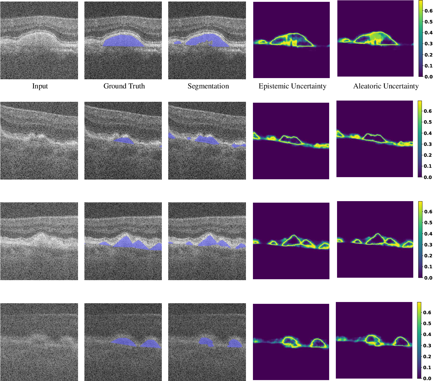Figure 2 for Analyzing Epistemic and Aleatoric Uncertainty for Drusen Segmentation in Optical Coherence Tomography Images