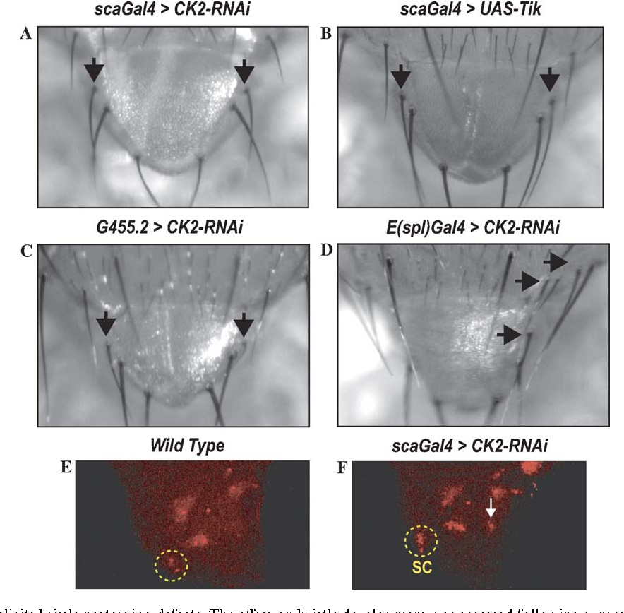 Figure 4 from Drosophila CK2 regulates lateral-inhibition during eye
