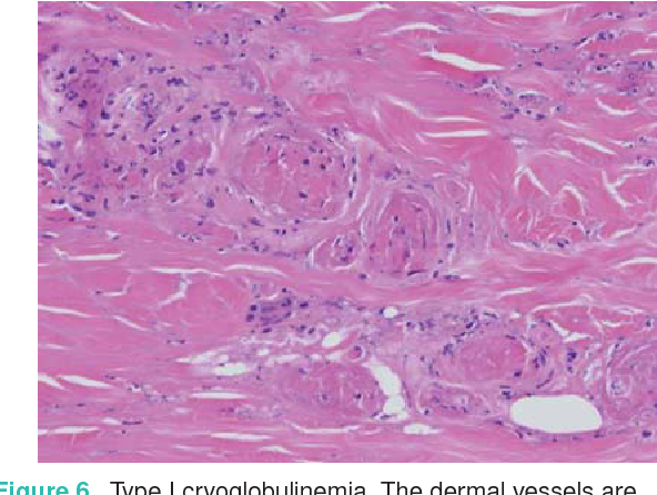 Figure 6 from [Diagnosis and treatment of livedo reticularis