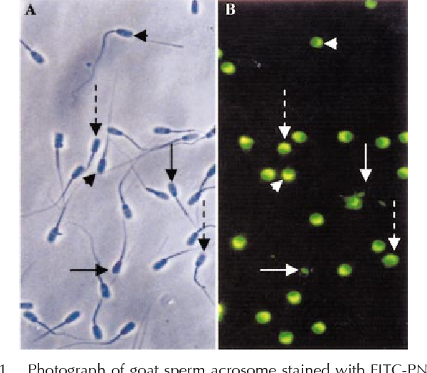 FIG. 1. Photograph of goat sperm acrosome stained with FITC-PNA. A) Image obtained by phase contrast microscope. B) The same field of image A, obtained by fluorescence microscope. Arrowhead indicates intact acrosome; arrow with dashed line indicates partially damaged acrosome; and arrow with solid line indicates lost acrosome. Magnification 3350.