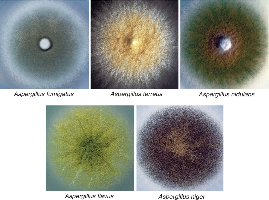 Figure 2 From Aspergillus Fumigatus And Related Species