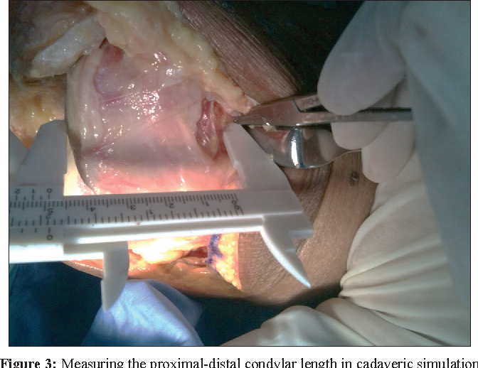 An Anatomical Study Of The Proximal Aspect Of The Medial Femoral