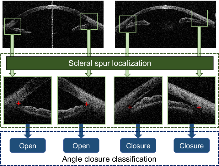Figure 1 for AGE Challenge: Angle Closure Glaucoma Evaluation in Anterior Segment Optical Coherence Tomography