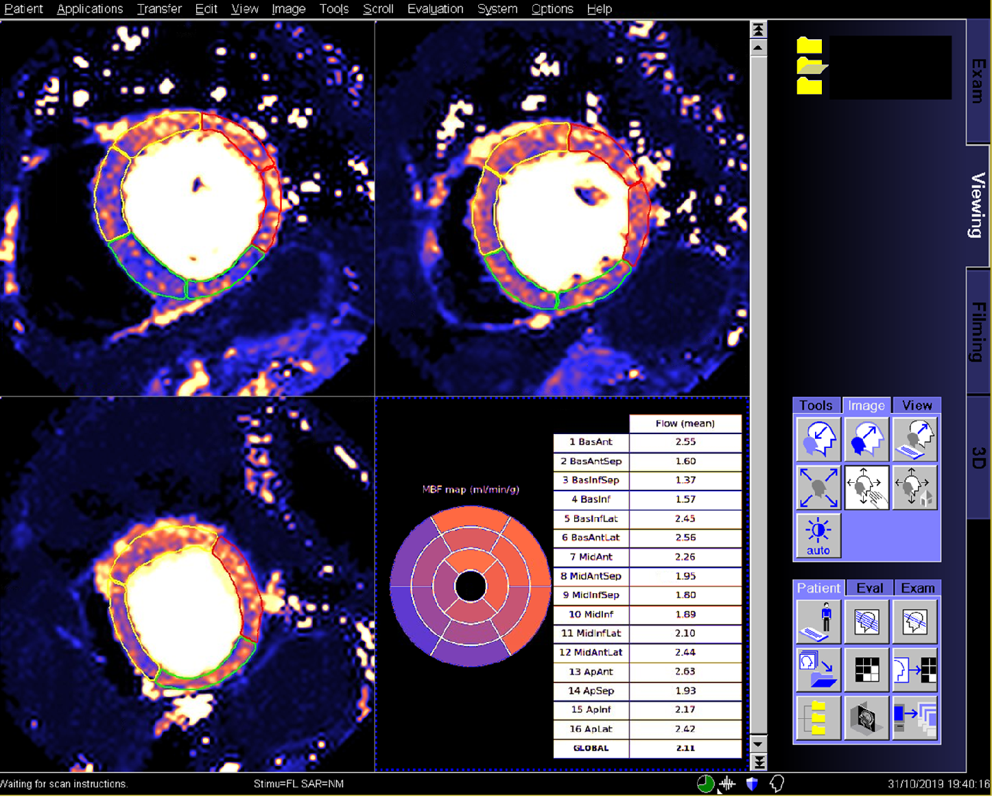 Figure 3 for Automated Inline Analysis of Myocardial Perfusion MRI with Deep Learning