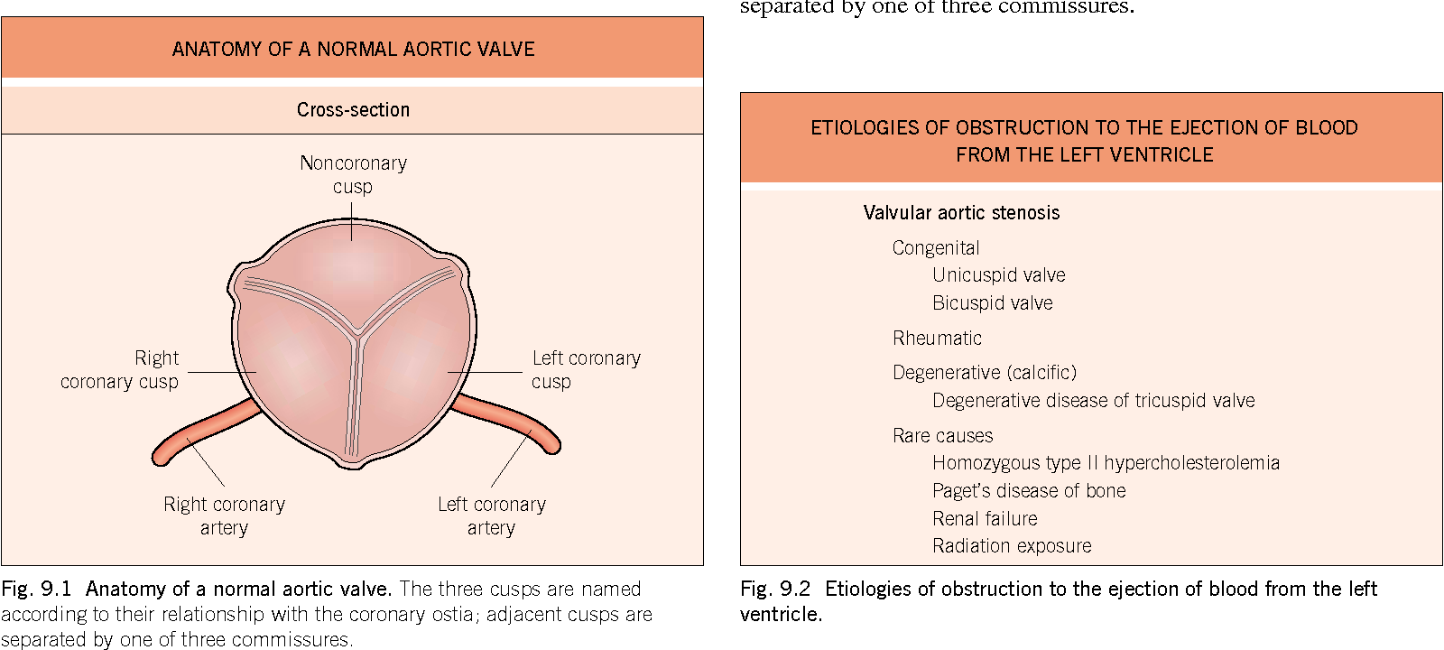 Figure 91 From Aortic Stenosis Semantic Scholar