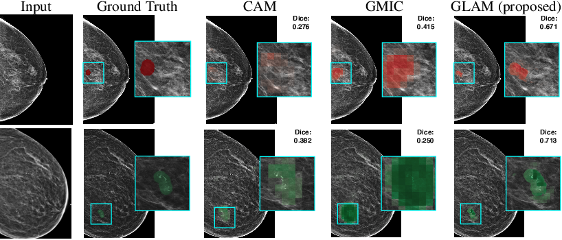 Figure 1 for Weakly-supervised High-resolution Segmentation of Mammography Images for Breast Cancer Diagnosis