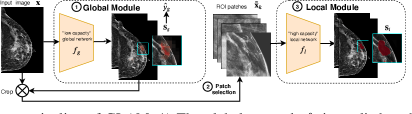 Figure 3 for Weakly-supervised High-resolution Segmentation of Mammography Images for Breast Cancer Diagnosis