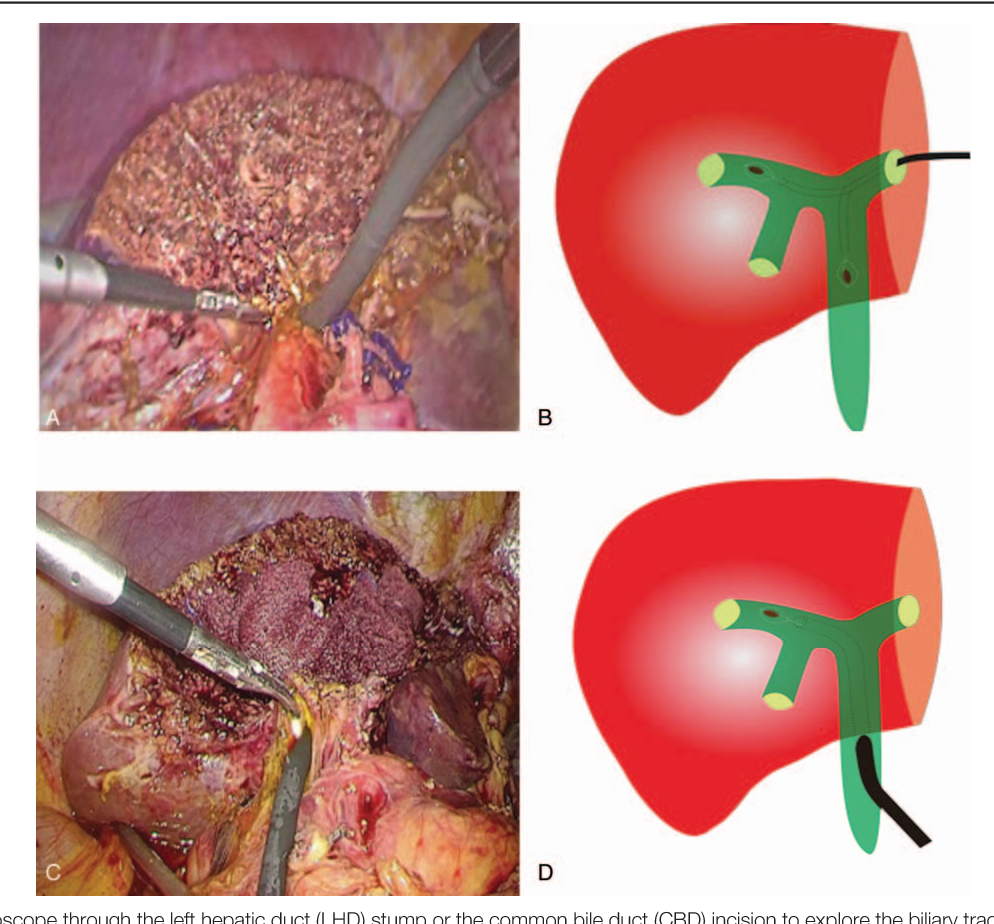 PDF] Biliary tract exploration through a common bile duct