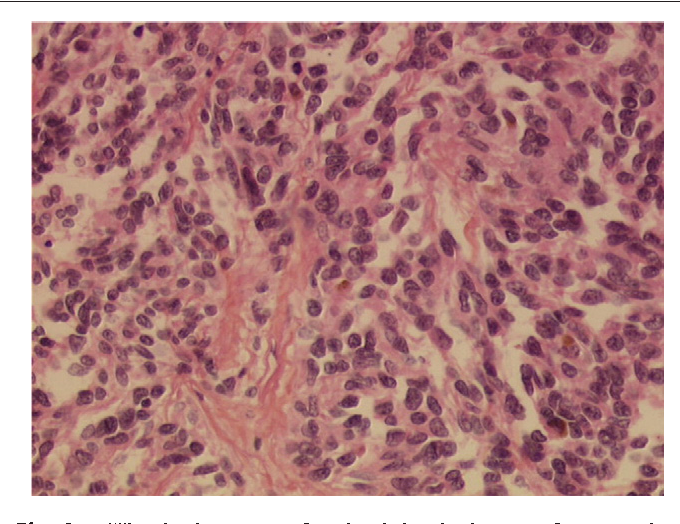 Fig. 2 Histologic aspect of main abdominal mass after resection (coloration H&E stain ×25) (patient 1).
