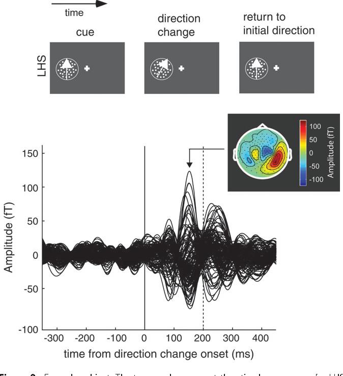 PDF] Activation of area MT/V5 and the right inferior parietal cortex