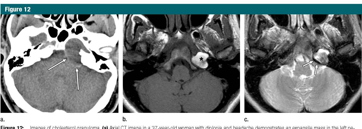 Figure 12 from Imaging review of the temporal bone: part I. Anatomy ...