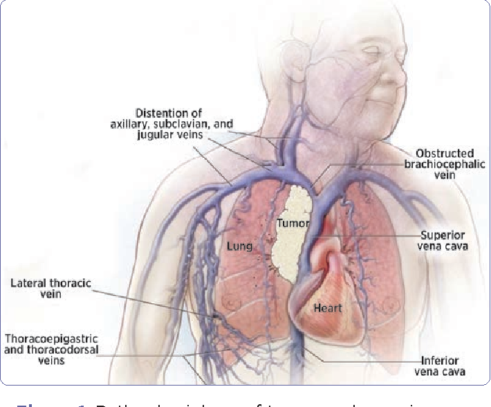 Superior Vena Cava Syndrome in the Cancer Patient: A Case Study ...