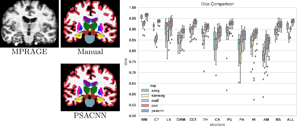 Figure 3 for Pulse Sequence Resilient Fast Brain Segmentation