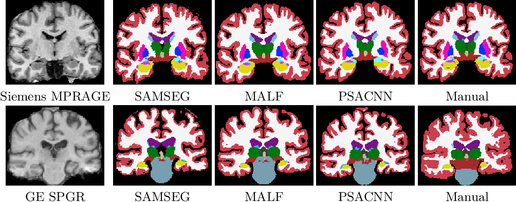 Figure 4 for Pulse Sequence Resilient Fast Brain Segmentation