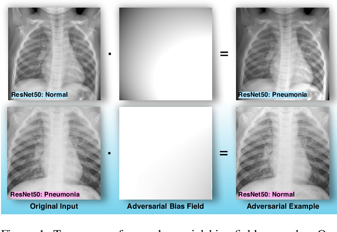 Figure 1 for Bias Field Poses a Threat to DNN-based X-Ray Recognition
