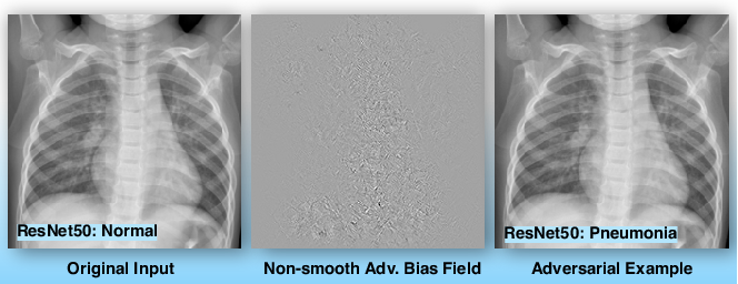 Figure 3 for Bias Field Poses a Threat to DNN-based X-Ray Recognition