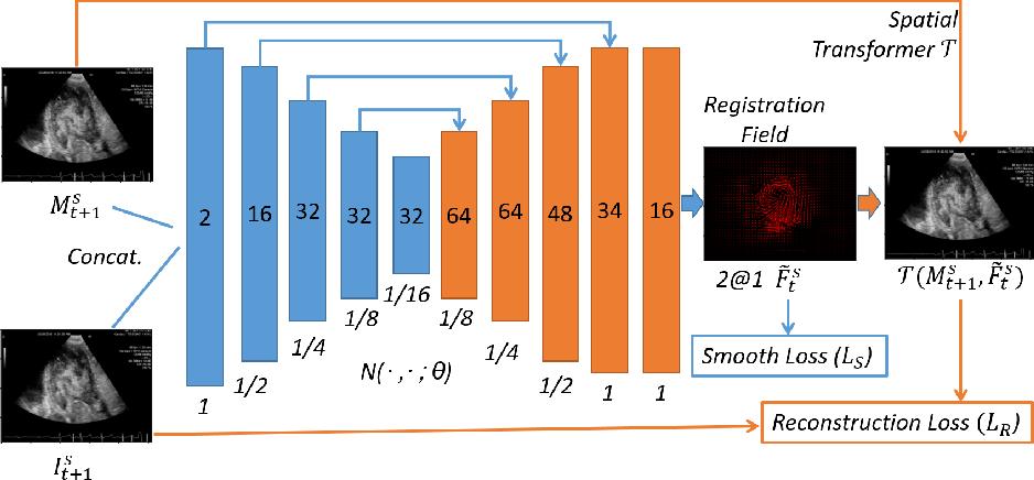 Figure 1 for Neural Multi-Scale Self-Supervised Registration for Echocardiogram Dense Tracking